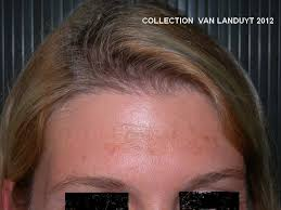 melasma-collection-hvl