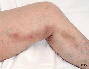 Si balancer les pieds cela que sera avec la varicosité