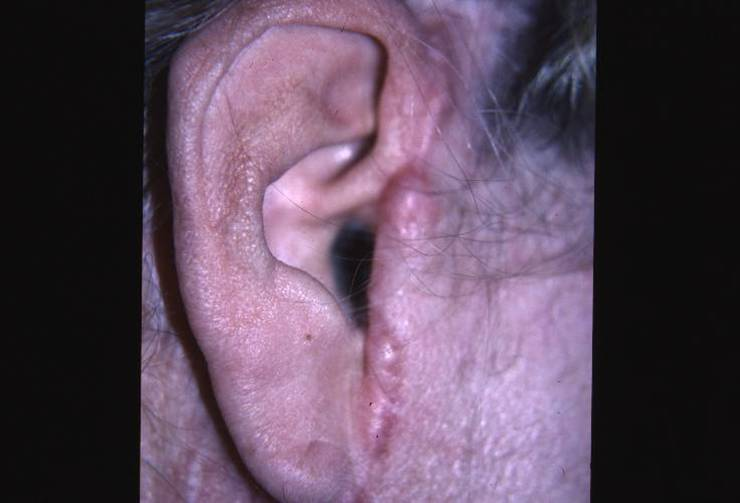 Cicatrcie hypertrophique HVL 2014