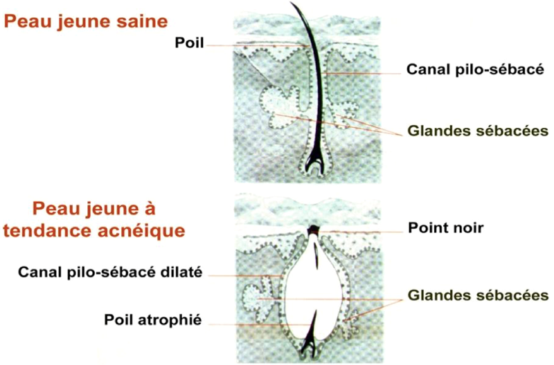 ACNE  : Une dermatose fréquente Dr Hervé VAN LANDUYT  Asfoder 2015