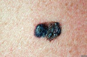 melanome-van-landuyt